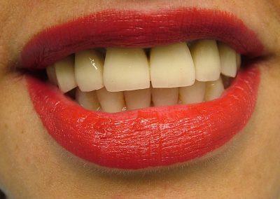 Dr.Morella_Smiledesign